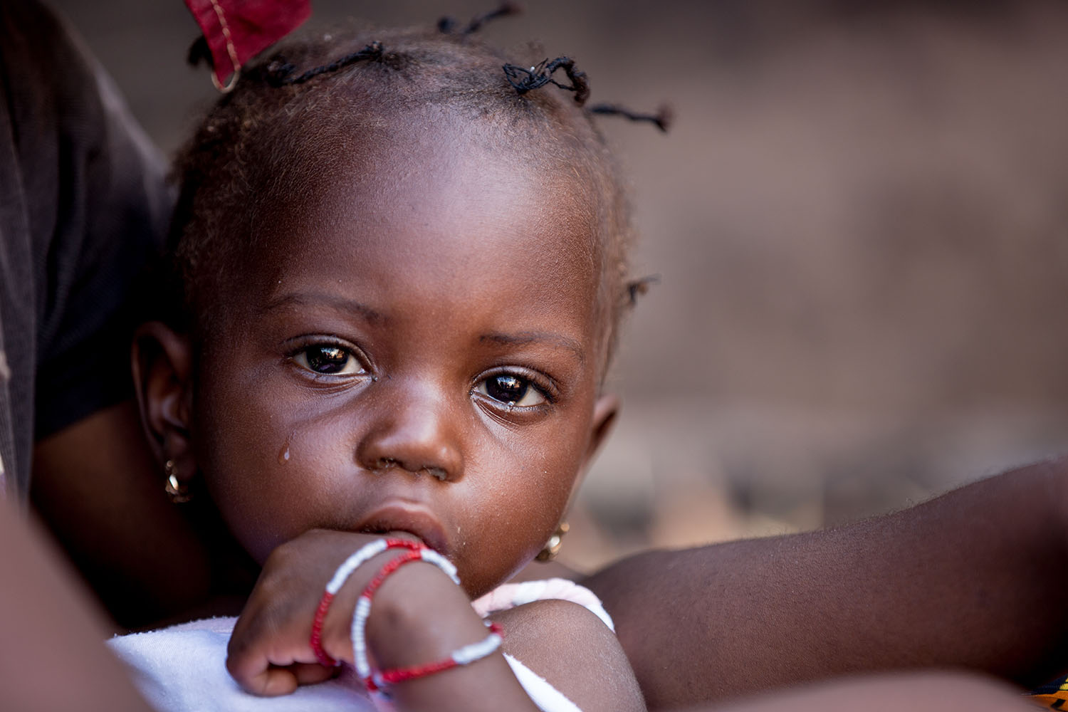 "Portrait of Nantene (18 months, released) A few months ago Nantene almost lost her life after being diagnosed at the local clinic with acute malnutrition. Thanks to UNICEF and the distribution of ""Plumpy Nut"" a peanut based product used to treat SAM (Seve"
