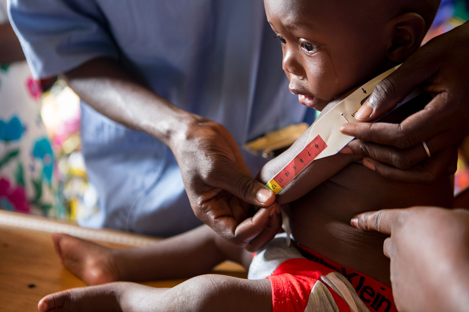At the clinic, children are examined for SAM (severe acute malnutrition) their MUAC is taken as well as the measurements of their upper arms. UNICEF continues to emphasise prevention activities and increasing access to quality care for severely malnourish